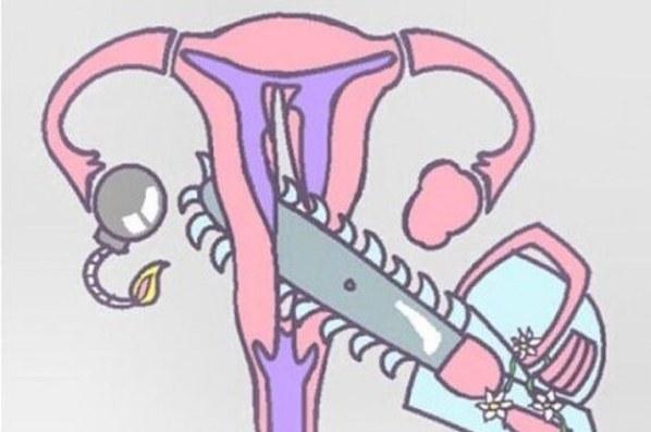 Period cramps 2.jpg